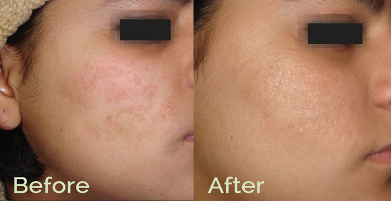 Microneedling Before & After