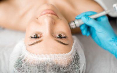 Microneedling: Skin Rejuvenation Secret